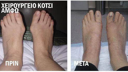 Χειρουργείο Κότσι