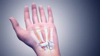 καρπιαίος σωλήνας, ορθοπεδικός χέρι, ορθοπεδικός παγκράτι , ορθοπεδικός αθήνα, κόστος χειρουργείο καρπιαίου σωλήνα