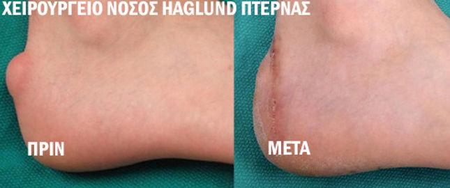 Χειρουργείο Πτέρνας , Νόσος Haglund
