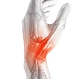 Νόσος de quervain , τενοντίτιδα χέρι , πόνος στο χέρι , χιερουργός άκρας χειρός