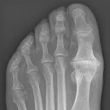 αρθρίτιδα μεγαλου δακτύλου ποδιού, Βέβες Αριστείδης Ηλίας