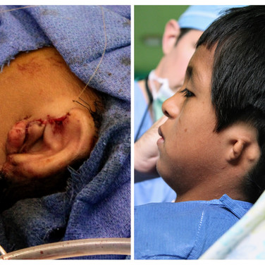 Microtia patient, before and after