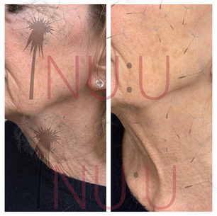HIFU COOL Before and After Jowl and Neck