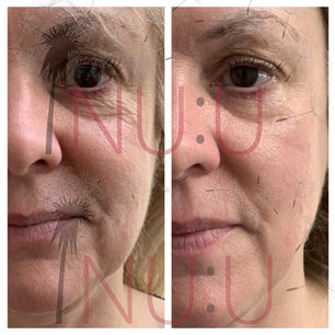 HIFU COOL Before and After Facelift