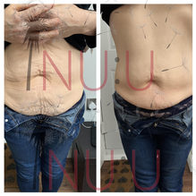 HIFU COOL Before and After Tummy Tighten