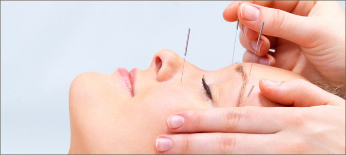 Cosmetic/ Facial Acupuncture
