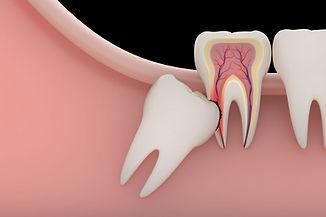 wisdom-teeth-removal-e1567720416161.jpg