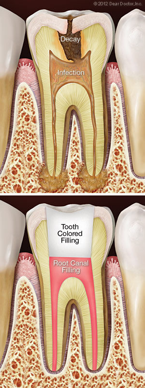 root-canal-treatment (1).jpg