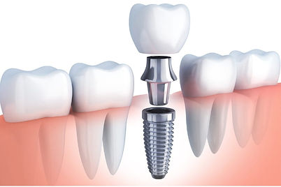 Croasdaile-Dental-Arts-dental-implants.j