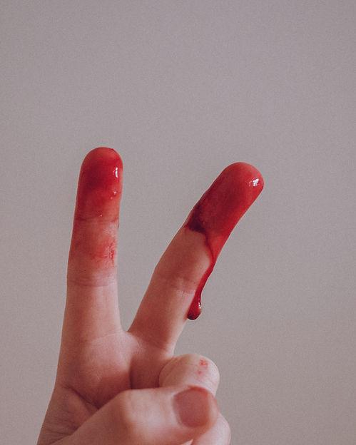 Menstruation%20is%20normal_edited.jpg