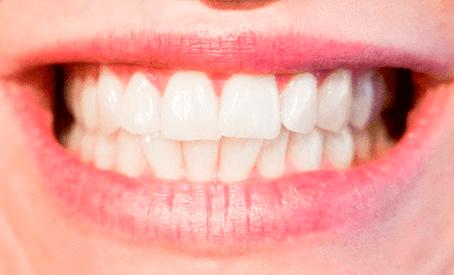 A importância da prótese na beleza de um sorriso