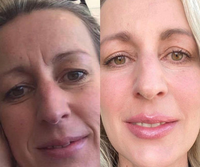 Filler Between Brows, in Temples, Cheeks, Chin, and Lips, Dysport in Forhead, Between Brows, Around Eyes, Above Lip