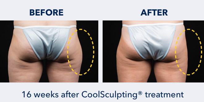 CoolSculpting on Outer Thighs