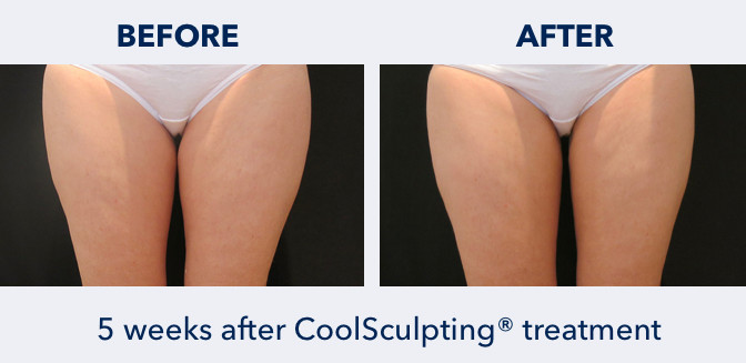 CoolSculpting on Inner Thighs