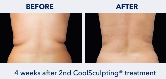 CoolSculpting on Flanks
