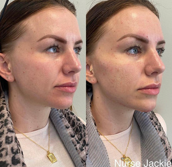 Filler in Jaw and Chin with Nurse Jackie