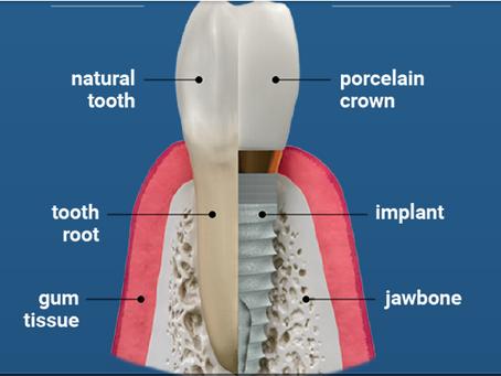 Dental Implants in Greer, South Carolina