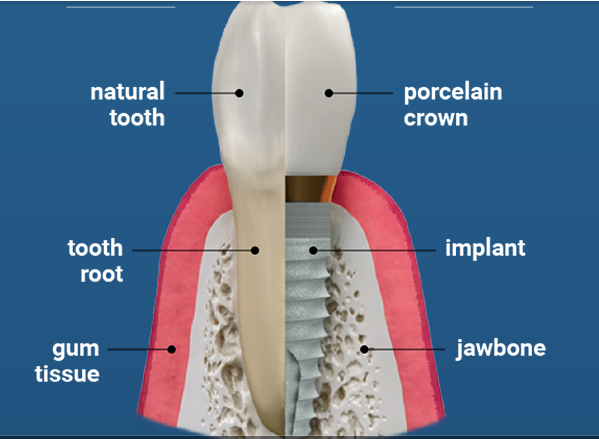 Affordable dental implants in Greenville, SC