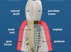 Free tooth implant consultation in Greer, SC