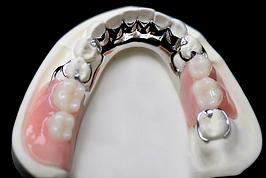 Removable Partial Denture.PNG