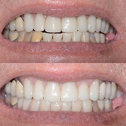 Before and After Veneers.jpg
