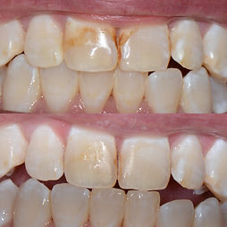 Enamel Microabrasion Before and After.jp