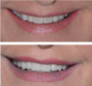 Smile Makeover Greenville, SC.jpg