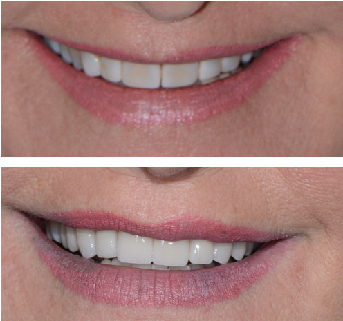 Cosmetic Dentist Adam Carraway in Greer, South Carolina completed smile makeover using Porcelain Veneers