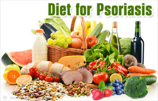 Can changing my diet improve my psoriasis