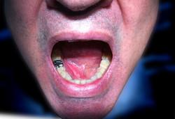 Sous-maxillite droite