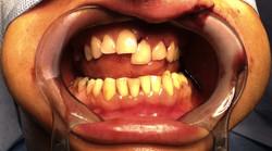 Fracture alvéolo-dentaire