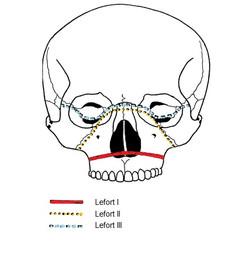 Traits de fracture des Lefort