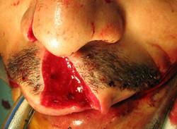 Plaie de la lèvre supérieure