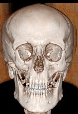 Scanner massif facial - 3D face