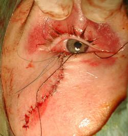 Plaie palpébrale inférieure