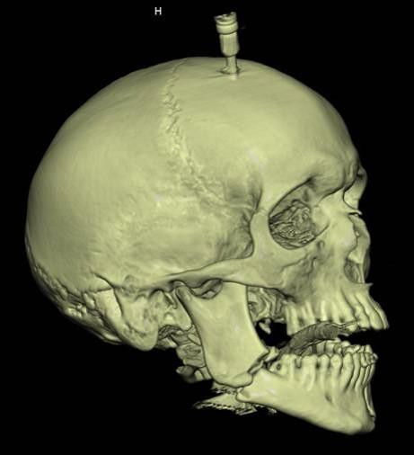 Reconstruction 3D TDM