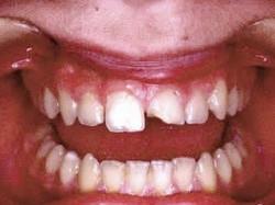 Fracture amélo-dentinaire de la 21