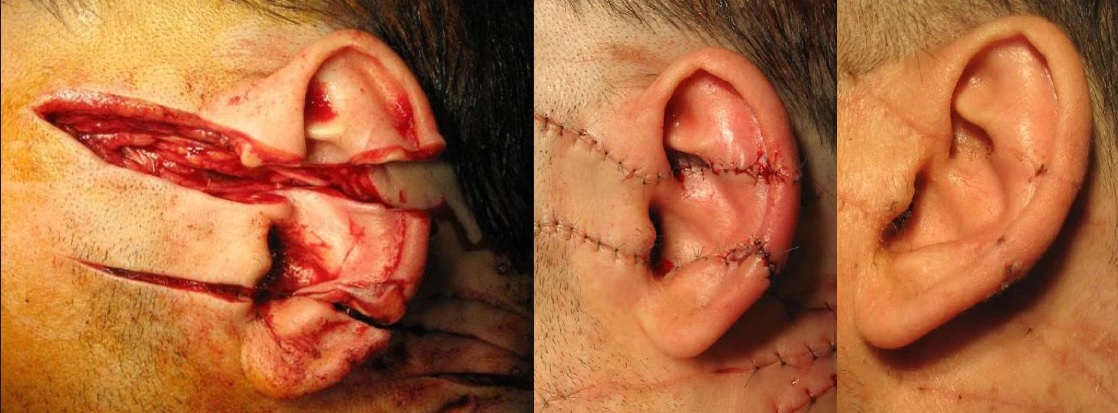 Plaie transfixiante de l'oreille G