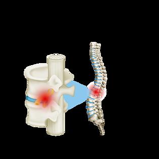 vertebra_3.png