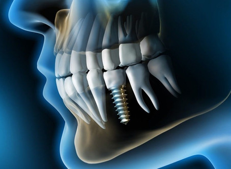 Какой бывает имплантация зубов?