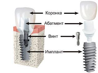 Имплант под ключ Воронеж.jpg