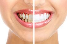 ZOOM! Teeth Whitening.jpg