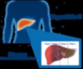 Stages of Hepatitis C