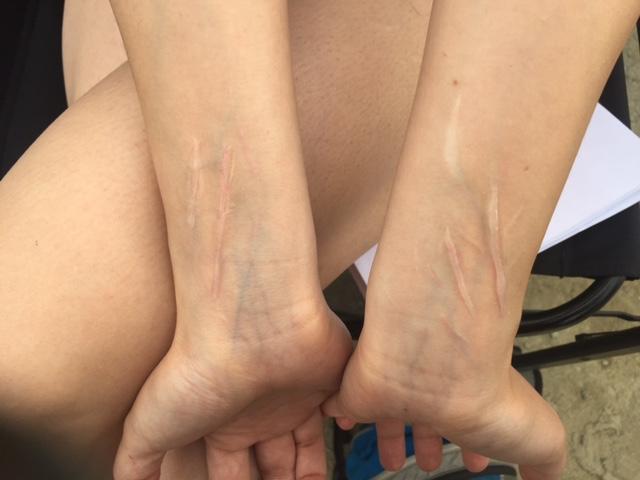 Healed Slit Wrist Scars