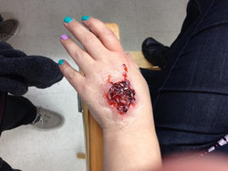 Hand with Maggots