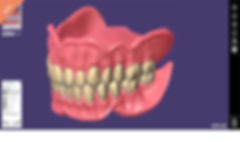 product-maincarousel-full-denture-module