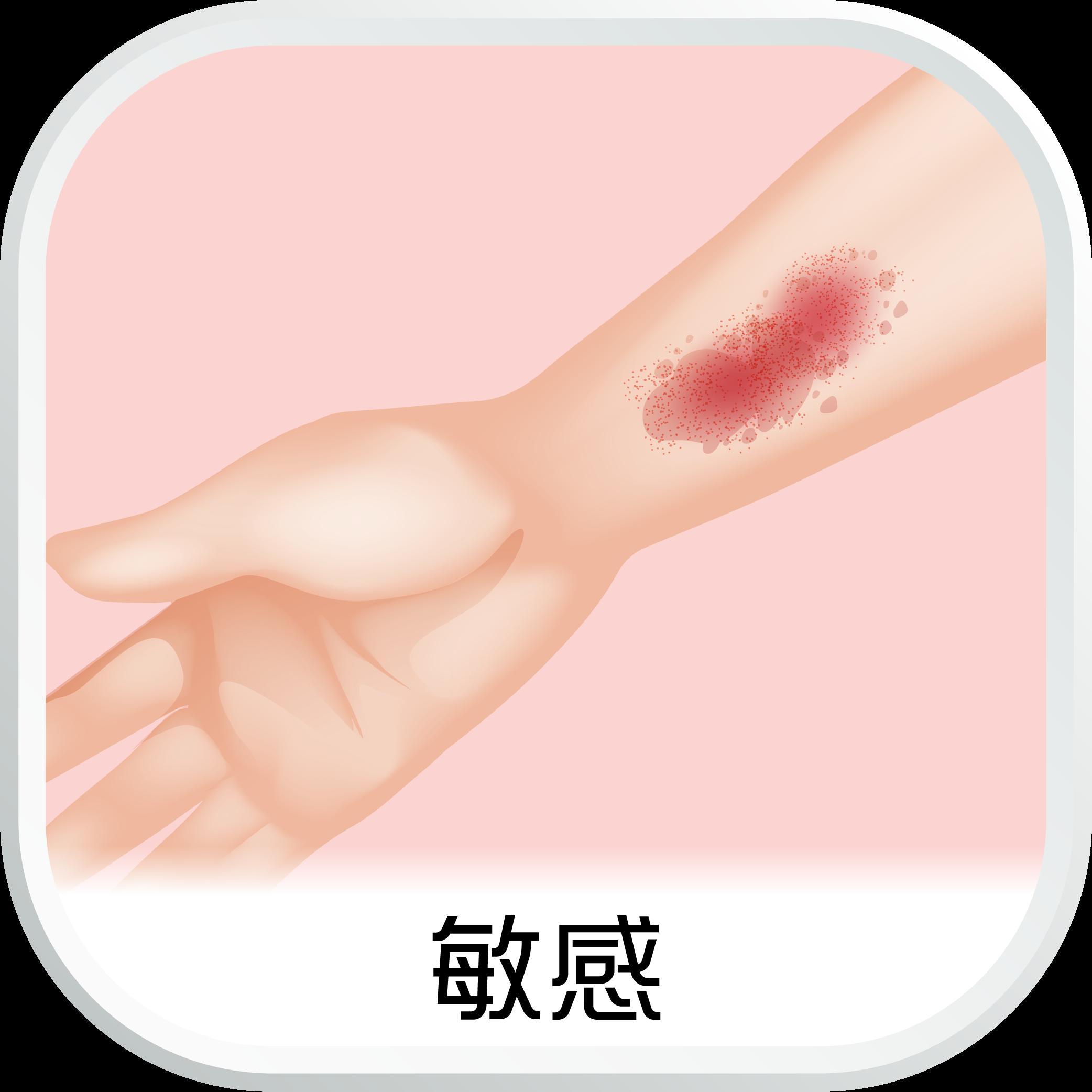 EHC_SubCat_aw_敏感