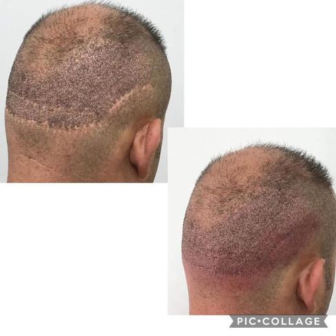 Micropigmentación en Alopecias
