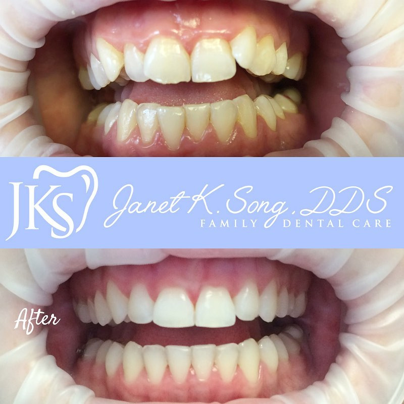 Janet K. Song DDS