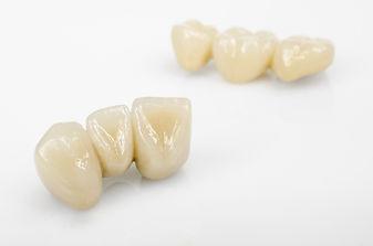 ceramics, dental technology.jpg